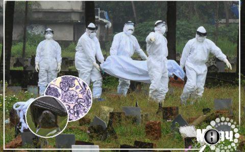 """Энэтхэгт """"нипа"""" вирусээр 10 гаруй хүн халдварлаж,12 настай хүү нас баржээ"""